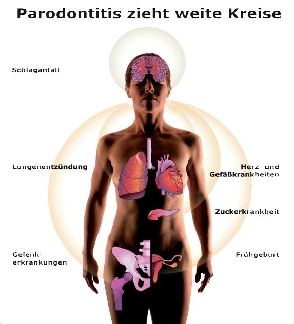 parodontose_folgen_prodente